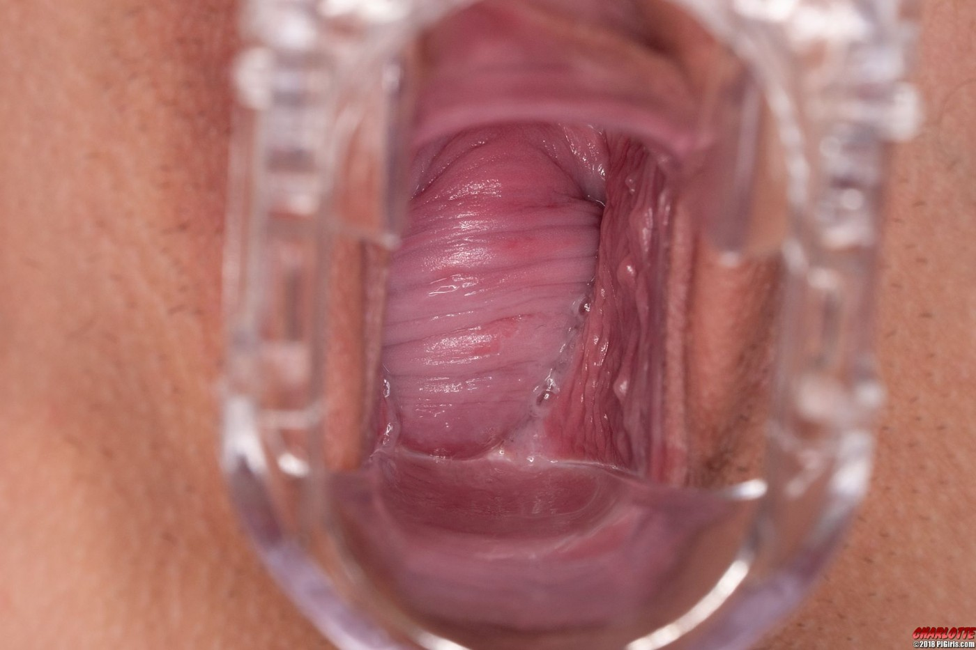 Normal inside of vagina